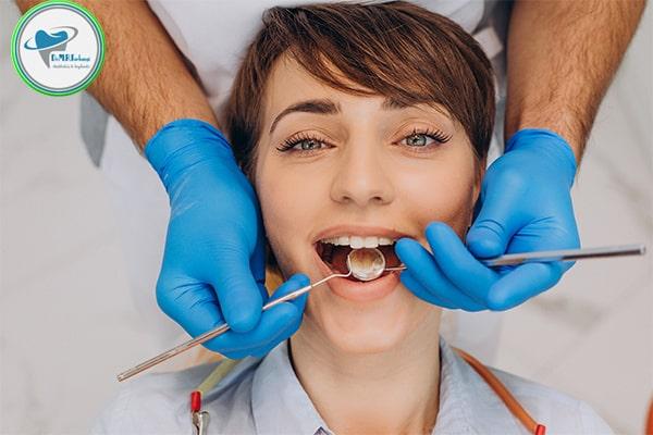پولیش دندان بعد از کامپوزیت