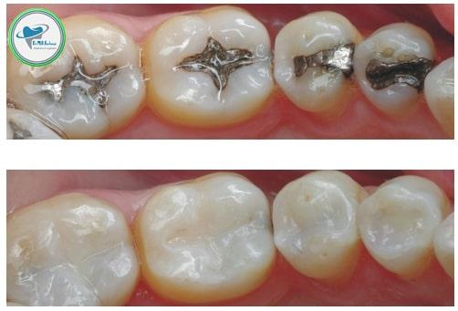 کامپوزیت روی دندان عصبکشی شده